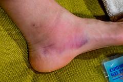 DSCF4422 (LEo Spizzirri) Tags: seattle foot injury rain crane capitol hill downtown developement