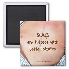 Scars Are Tattoos With Better Stories Magnet (Paradise Photos) Tags: cvd diabetes heartattack cardiovasculardisease heartattacksurvivor zipperclub tshirt teeshirts shirt celebratelife heartdiseaseawareness heartfoundation cardiacarrest suddencardiacarrest stent cabg triplebypass bypasssurgery aed defibrillation automatedexternaldefibrillation coronarybypasssurgery cpr depression anxiety panicattack lad widowmaker heartdisease bhf atrialfibrillation cardioversion myocardialinfarction ventricularfibrillation arrhythmia cardiacrehabilitation britishheartfoundation brokenheart mendedheart magnet