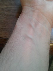 IMG752-Day 5 (knowledgeguru_37) Tags: wrist veins scar selfinflicted lighterburn