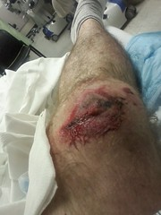 Houston Texas July 30 2013 This is me in my ER hospital bed with a fuck up knee and road rash (mrchriscornwell) Tags: from road me up bike 30 yard hospital out this is big jump jumping bed texas er with hole fuck under some july houston going right it off next when end motorcycle what roll plus after got slip how about 40 had knee something caught mph 60 happen put rash 2013 my i