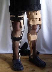 Pair of braces 4 (JKiste2008) Tags: leg brace calipers