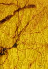 Neurona sobre fondo ramificado. Neuron on branched background. (Esetoscano) Tags: neurona neuron dendritas dendrites ramificación branching ramificacionesdicotómicas dichotomicbranching histología histology cortezacerebral cerebralcortex erizo de tierra hedgehogarenasandmanipulaciónmanipulation fantasía neuronal fantasies