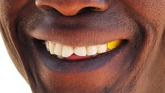 Plastic Tooth Filling (Sascha Grabow) Tags: africa people man black male face yellow tooth jaw teeth plastic dentist angola gebiss saschagrabow