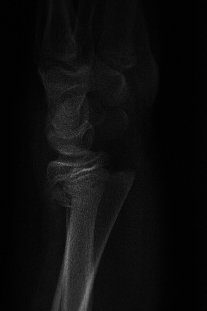 The World's Best Photos of arm and xray - Flickr Hive Mind