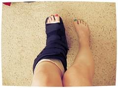 014 (katyacaster) Tags: broken leg cast woman