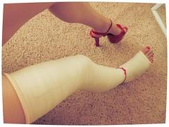 091 (katyacaster) Tags: broken leg cast woman
