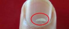 هل تعلم ما سبب ظهور البقع البيضاء علي الاظافر وكيفية التخلص منها (Arab.Lady) Tags: هل تعلم ما سبب ظهور البقع البيضاء علي الاظافر وكيفية التخلص منها