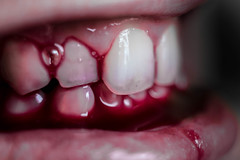 Broken Glass (explored 31/10/16) (lacygentlywaftingcurtains) Tags: macromonday spookyandfrightful macro closeup teeth bite blood bloody mouth lips creepy disturbing dark halloween vampire cannibal bleeding wound gross scary frightening sinister bloodymouth horror