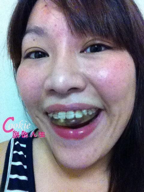 牙齒 01 (14)