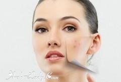 أفضل 9 أقنعة الوجه الطبيعية حب الشباب والبقع الداكنة (Arab.Lady) Tags: أفضل 9 أقنعة الوجه الطبيعية حب الشباب والبقع الداكنة