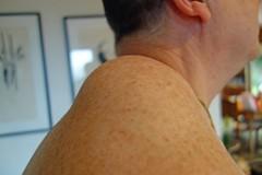 2013 06 10 Theme - My Shoulder my Lyposarcomas-4 (pierre-marius M) Tags: la theme shoulder source clinique my lyposarcomas10