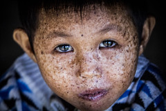 nh _6 (Nguyenhong78) Tags: children viet vietnam life disease eye canon canon60d 50mm first obsession