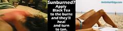 sunburn (AnUnfairEdge) Tags: life black sexy beach home tea tan babe tricks burn bikini tips sunburn suntan hacks helpful secrets remedies hints