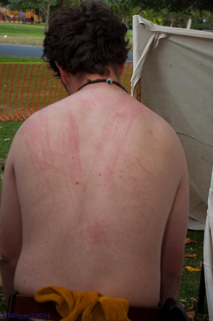 back flogging