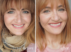 Before and after picture of Philips ZOOM! teeth whitening treatment - Read about the full process | Not Dressed As Lamb, over 40 style blog (Not Dressed As Lamb) Tags: teeth whitening philips zoom dentist