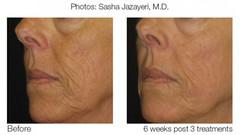 Matrix-IR-Treatment-facial fold removal (charmingskinus) Tags: facialfoldsremoval wrikles removal wrinkles facial folds