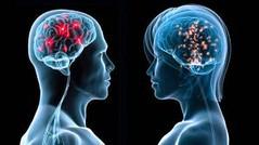 10 اختلافات بين دماغ الرجل ودماغ المرأة.. هل تعلم ما هى ؟ (Arab.Lady) Tags: 10 اختلافات بين دماغ الرجل ودماغ المرأة هل تعلم ما هى ؟
