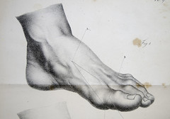 Diagram of foot showing incisions to amputate big toe (liverpoolhls) Tags: history skeleton leg medical anatomy bones femur knee physiology radius ulna patella