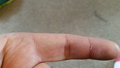 2015-09-03 09.55.10 (oldchap1000) Tags: finger injury