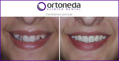 ORTODONCIA (ORTONEDA CLINICA DENTAL- TARRAGONA) Tags: ortodoncia clinicadental brackets estetica invisalign incognito adolescentes adultos nios bueno clinica dentista