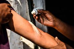 Trip to Angsana (mynameisharsha) Tags: india ouch pain nikon weekend getaway bangalore band injury first powder resort aid doctor karnataka spa bandage sprain hydrogen peroxide angsana 50mmf18af d7100 mynameisharsha