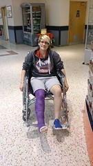 BWpRjRJIQAAmtRu (cb_777a) Tags: broken leg ankle foot cast crutches toes