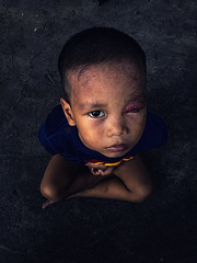 Portrait - FACES, the series (Mio Cade) Tags: eye infection abuse face suffer sad pain argony toddler kid child baby philippines manila aroma tondo portrait phone asia