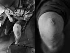 Knee (Paul Fenrich) Tags: blackandwhite canon diptych stitches axe knee