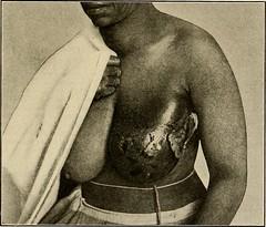 Anglų lietuvių žodynas. Žodis scleroma reiškia 1) rinoskleroma lietuviškai.