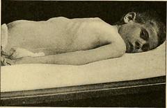 Anglų lietuvių žodynas. Žodis ruptured intervertebral disc reiškia plyšus tarpslankstelinio disko lietuviškai.
