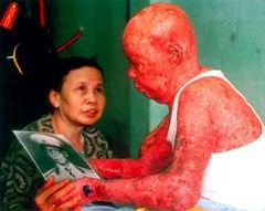 #A Vietnamese soldier who helped defend a US military base gets emotional looking at a photo of himself from before he developed the symptoms of exposure to Agent Orange, 1980s [450x358] [NSFW] #history #retro #vintage #dh #HistoryPorn http://ift.tt/2fx9E (Histolines) Tags: histolines history timeline retro vinatage a vietnamese soldier who helped defend us military base gets emotional looking photo himself from before he developed symptoms exposure agent orange 1980s 450x358 nsfw vintage dh historyporn httpifttt2fx9ekd