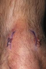 IMG_0324 (David J. Thomas) Tags: knee surgery meniscus arthroscopy dave wrmc