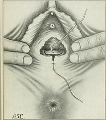 Anglų lietuvių žodynas. Žodis vulvae reiškia vulva lietuviškai.