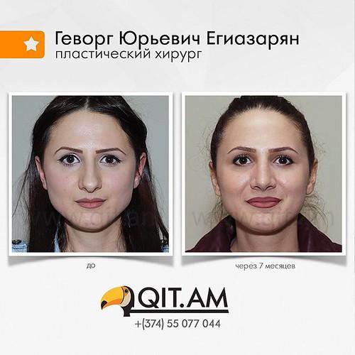 277-е фото в галерее до и после ринопластики.  7 месяцев после операции.  #пластический #хирург #ГеворгЮрьевич #Егиазарян #нос #рино  #nosejob #пластика #ринопластика #пластиканоса #красивыйнос #операция #операционная #доипосле #допосле #Ереван #Армения
