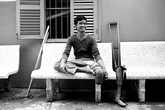 amputee_bw_05webflickr (carrollfoto) Tags: cambodia amputee rehabilitationcentre amputees landminevictims artificiallimbs prostheticlimbs