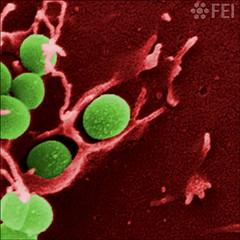 Staphylococcus aureus invasion (FEI | Part of Thermo Fisher Scientific) Tags: fei microscopy nanotechnology nanoimage magnification feiimagecontest inspect lifesciences cellularbiology bacteria hostmicrobeinteractions humancells bacterialpathogenesis
