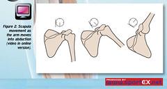 42DY22_2 (sportEX journals) Tags: shoulder rehabilitation shoulderpain sportex sportsinjury sportsmassage impingement sportstherapy sportexdynamics shoulderrehabilitation