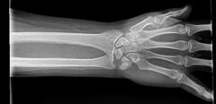 X-ray Vision (Adventurer Dustin Holmes) Tags: xray xrays hand 2016 wrist left bones medical