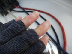 Two weeks worth of sailing injuries (Figgles1) Tags: winter club sailboat race hurt sailing yacht finger iii fingers injury racing yachts sailboats fremantle fsc injuries pipedream pipedreamiii fremantlesailingclub p1110384