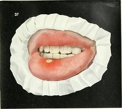 Anglų lietuvių žodynas. Žodis tonsillitis reiškia n angina lietuviškai.