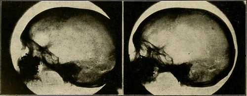 "Image from page 325 of ""Elementary and dental radiography / by Howard Riley Raper"" (1918)"