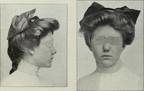 "Image from page 39 of ""The Dental cosmos"" (1912)"