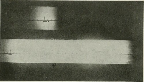 """Image from page 548 of """"The American journal of roentgenology, radium therapy and nuclear medicine"""" (1906)"""