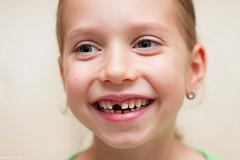 (slezo) Tags: tooth teeth kid girl child eyes smile happy