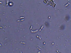 Wild Fruit Yeast (Bryan    Doty) Tags: wild home beer brewing images micro yeast sour brew microscope bacteria cantillon drie fonteinen brettanmonyes