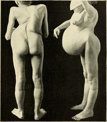 Image Gallery kyphoscoliosis