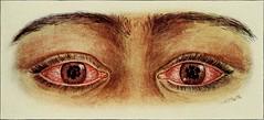 Anglų lietuvių žodynas. Žodis acute reiškia a 1) smailus, aštrus, jautrus (apie klausą); 2) smarkus (apie skausmą); 3) įžvalgus lietuviškai.