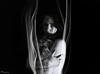 Melancholia #2 (Y-Control Photography) Tags: uk ireland portrait woman white black beautiful canon studio naked fire photography photo intense eyes key skin doubleexposure smoke low young semi brunette incense melancholic mournful 60d ycontrolphotography