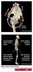 62MD23 (sportEX journals) Tags: rehabilitation hamstring sportsmedicine sportex sportsinjury sportexmedicine sportsrehabilitation