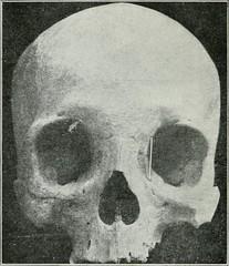 Anglų lietuvių žodynas. Žodis morbidities reiškia sergamumas lietuviškai.